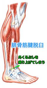 腓骨筋腱脱臼