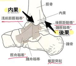 足関節 骨折