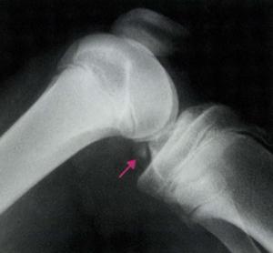 下肢のスポーツ外傷と障害 (整形外科臨床パサージュ)  第一版 中山書店