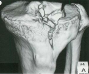 引用画像:ビジュアル基本手技 カラー写真で見る!骨折・脱臼・捻挫 羊土社
