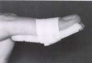 引用画像:スポーツ外傷・障害の理学診断・理学療法ガイド 第二版 文光堂