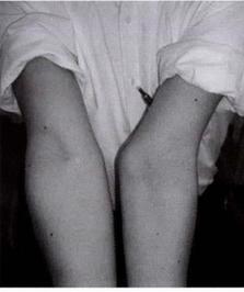引用画像:達人が教える外傷骨折治療 第1版 全日本病院出版会