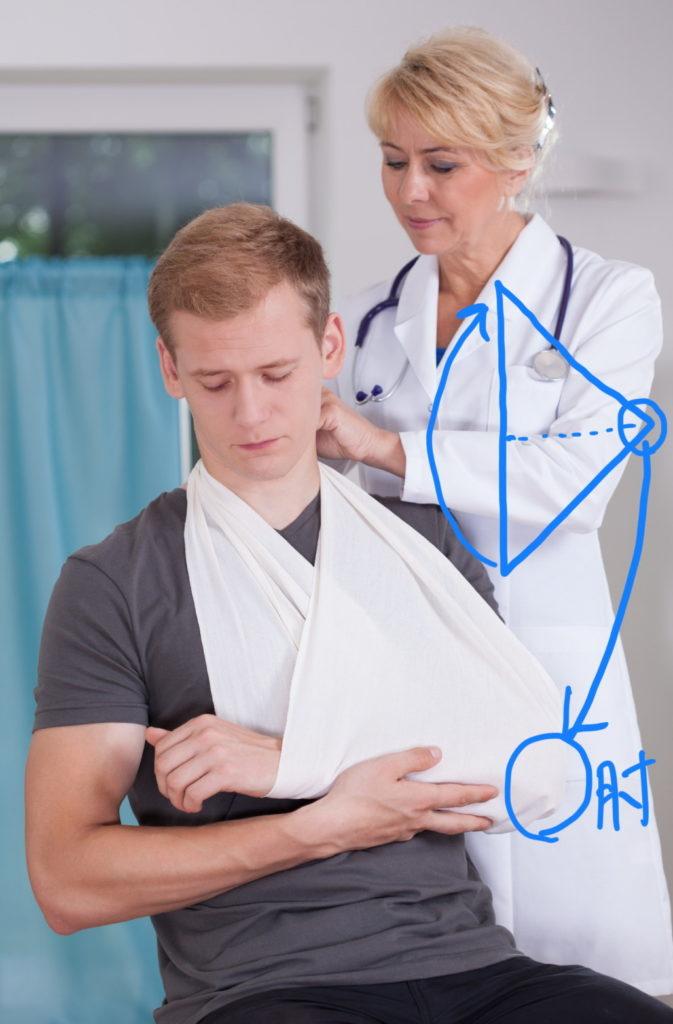 三角巾の腕のつり方