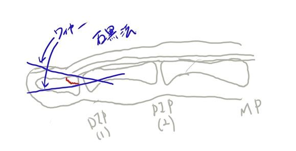 骨性マレット 骨性槌指 石黒法 手術