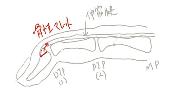 骨性マレットフィンガー 骨性槌指